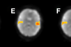 Depictions of brain activity as the patient is in the FRMI machine when asked questions or to perform activities.